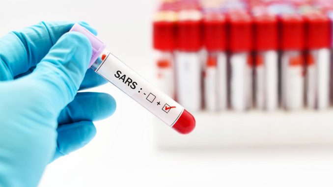SARS-Coronavirus-2-Test