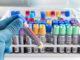 Laborantin mit Blutproben