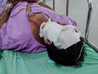 Patient mit schweren Gesichtsverletzungen