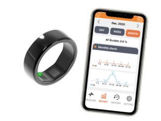Kardiotracker Cart-I im Design eines Ringes