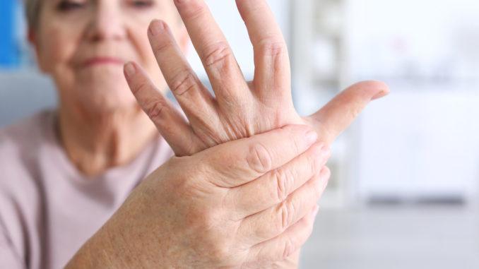 Rheuma-Patientin