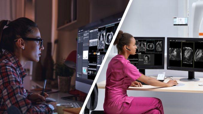 WeScan ist ein neuer Remote-Scanning-Service für diagnostische Bildgebung. (Foto: Siemens Healthineers)